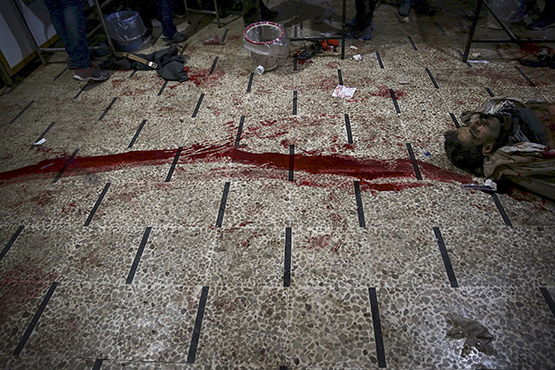 The body of a dead man is seen next to blood stains at a field hospital, after what activists said were air and missile strikes, in the Douma neighborhood of Damascus, Syria December 13, 2015. Douma in Syria, an area controlled by rebels fighting to topple President Bashar al-Assad, has been shelled continuously for the past three years. The injured are taken to basements and shelters transformed into field hospitals run by medical staff who have stayed in the battered neighborhood of Damascus.